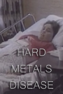 Image of Hard Metals Disease